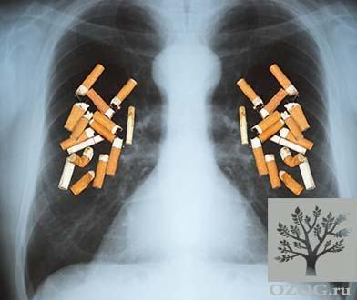 Очищение легких и бронхов после отказа от курения: чем себе помочь