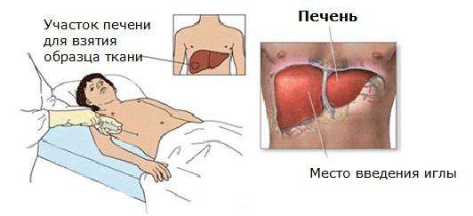 Стеатогепатит: что это такое, неалкогольный и алкогольный тип, код по МКБ 10, признаки при минимальной, умеренной и выраженной степени активности, лечение