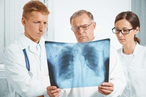 Какой кашель при раке легких