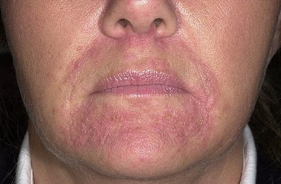 Покраснение вокруг рта, шелушение кожи у взрослого и ребенка: причины и лечение