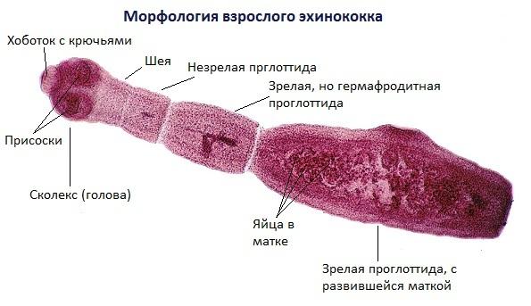 Эхинококкоз печени: что это такое, код по МКБ 10, анализ и диагностика, ИФА и другие методы, симптомы, лечение, операция