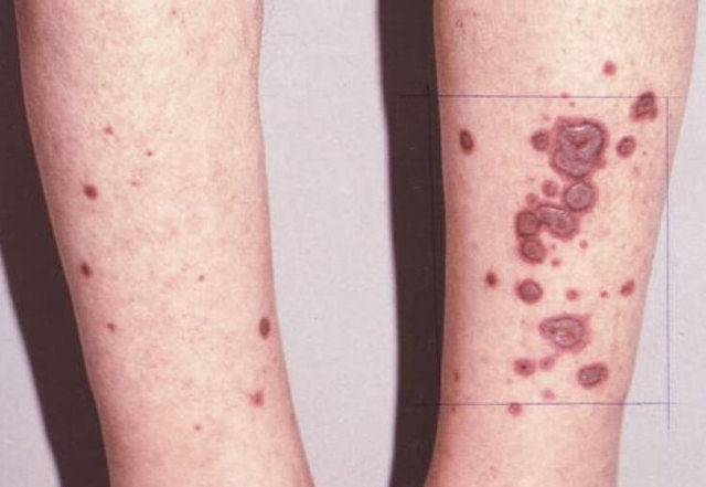 Многоформная экссудативная эритема: что это такое, симптомы, причины и лечение