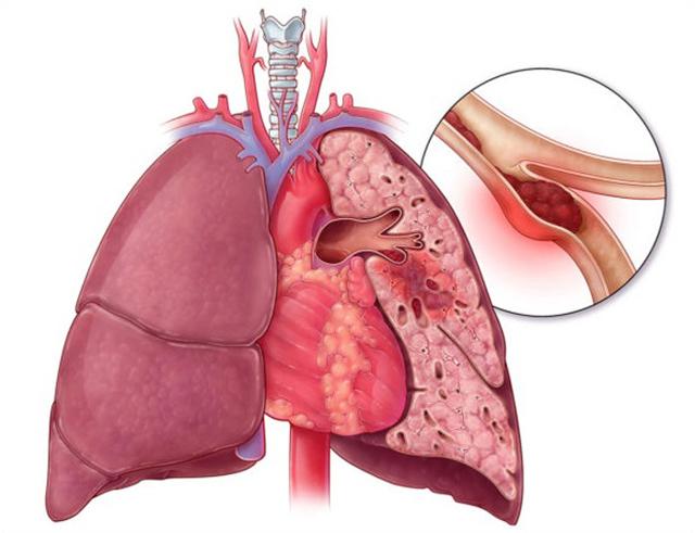 Пневмония, инфаркт легкого: особенности заболевания