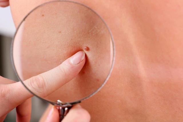 Папиллома чешется и зудит: причины, опасные симптомы и методы устранения зуда