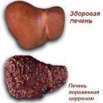 Симптомы болезни печени у женщин: проблема скрытого протекания заболеваний, первые признаки, характер боли при воспалениях, при камнях, лечение