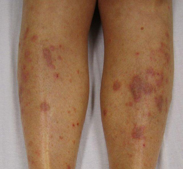 На ногах появились красные пятна и чешутся: фото, как лечить традиционными и народными средствами