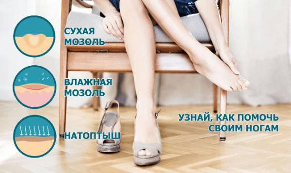 Компид — пластырь от сухих и влажных мозолей на ногах: инструкция по применению, противопоказания