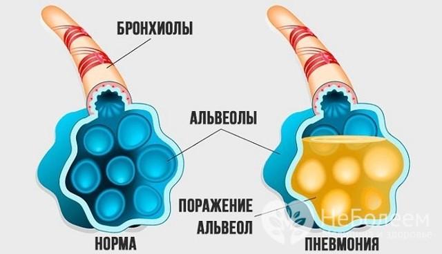 Сливная пневмония: особенности заболевания
