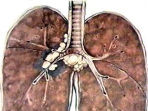 Какие существуют формы туберкулеза