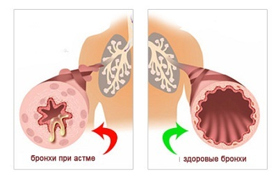 Как проводится лечение острого бронхита