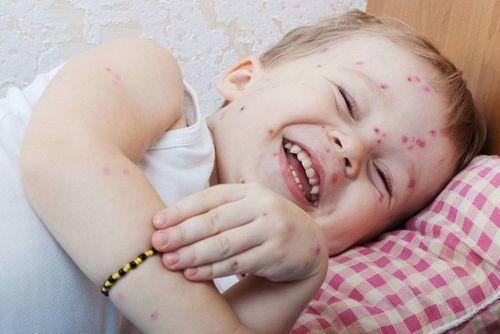 Герпес на спине: причины и лечение в домашних условиях у ребенка и взрослого
