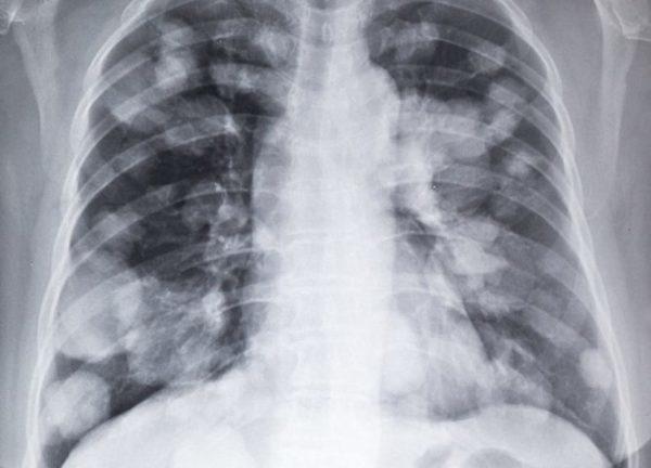 Какой дают прогноз выживаемости при раке легких 3 стадии