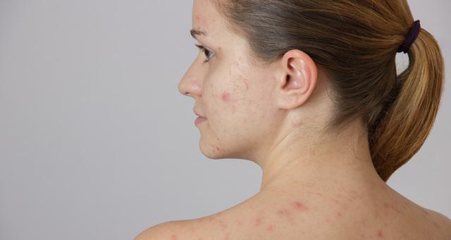 Темные пятна на коже: что это значит, почему появляются и как от них избавиться