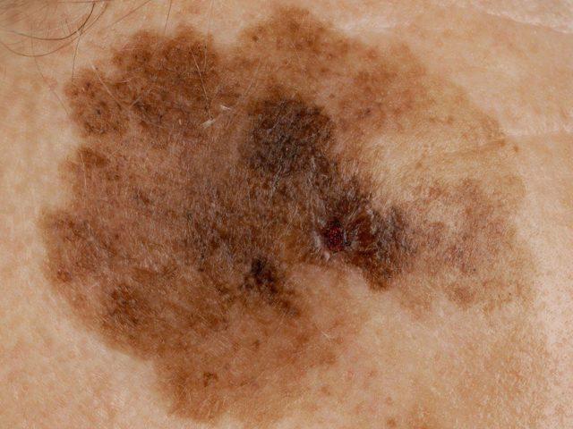 Меланоз кожи: что это такое, причины, виды, симптомы, лечение и профилактика