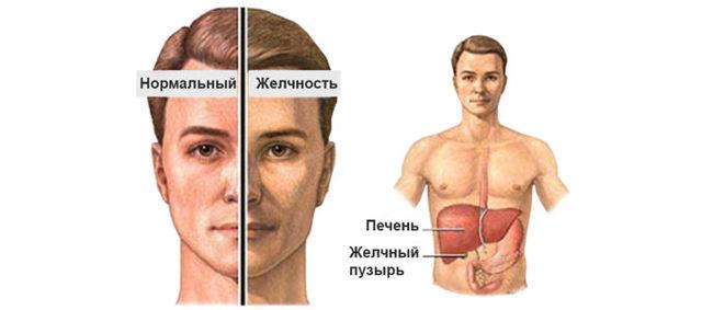 Синдром Жильбера: что это такое, симптомы, код МКБ 10, клинические рекомендации по лечению, генетический тест и другие анализы, чем опасна эта болезнь