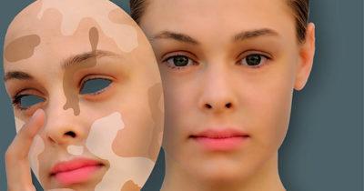 Депигментация кожи: что это, причины появления белых пятен, симптомы и виды