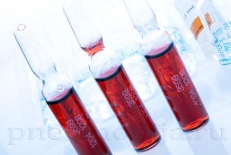 Правосторонняя нижнедолевая пневмония: проверенные методы лечения