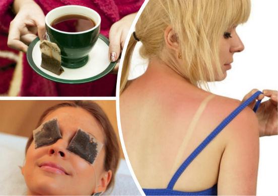 Волдыри на коже после загара: первая помощь, как лечить в домашних условиях