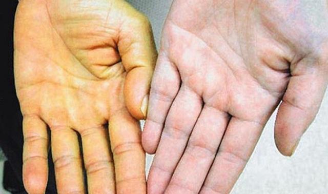 Паренхиматозная желтуха: что это, симптомы и жалобы, причины, код по МКБ 10, какие анализы нужно сдавать, лечение