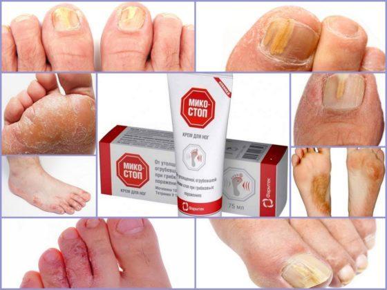 Микостоп крем-паста для ногтей: отзывы, инструкция по применению, цена, аналоги