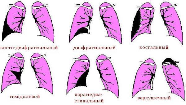 Как лечить осумкованный плеврит