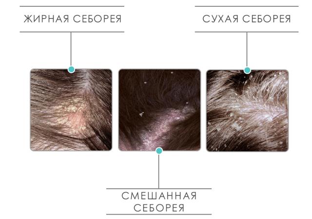 Как лечить себорею на голове в домашних условиях: медикаменты и народные методы