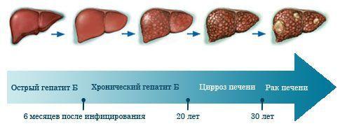 Симптомы болезни печени: проблема скрытого протекания заболеваний, первые признаки нарушения работы органа, лечение воспалений в домашних условиях