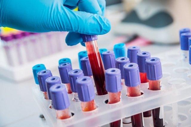 Как Определить Туберкулез: Современная Диагностика