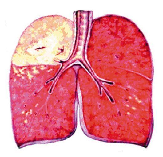 Казеозная пневмония: диагностика и лечение