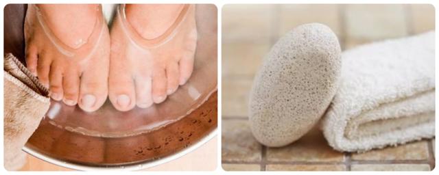 Мозоль с корнем на подошве или пальце ноги: причины, процедуры и медикаменты для удаления