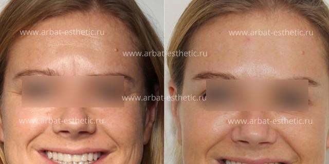 Как убрать морщины на лбу: эффективные методы в домашних условиях, популярные косметологические процедуры