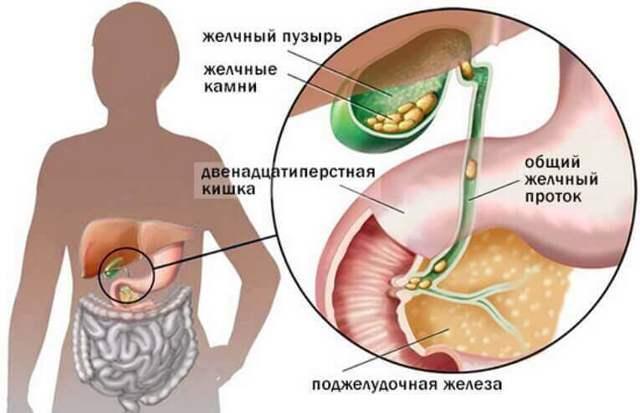 Болит желчный пузырь: признаки и симптомы у женщин и мужчин, причины, почему бывает после еды, чем лечить, что делать