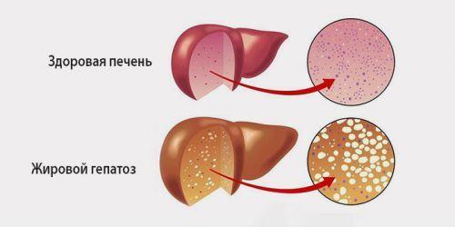 Ожирение печени: причины, лечение, лекарственные препараты, народные методы, что делать, чтобы избавиться от проблемы, питание, диета, последствия