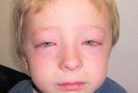 Пищевая аллергия у ребенка: фото, симптомы, причины, лечение и профилактика
