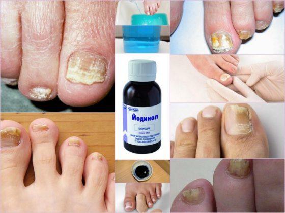 Йодинол от грибка ногтей: отзывы, инструкция по применению, цена, аналоги, противопоказания