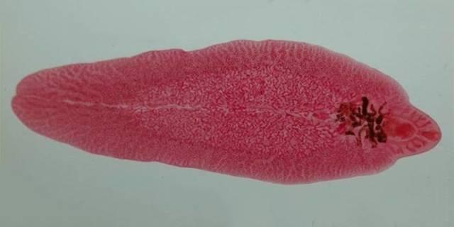 Паразиты в печени человека: симптомы заболеваний, какие черви живут в этом органе, как определить и проверить, лечение, можно ли вывести народными средствами
