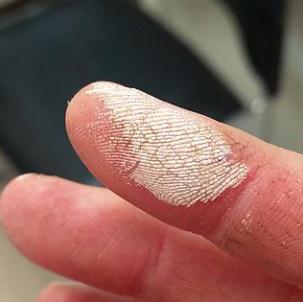 Ожог перекисью водорода: что делать при поражении кожи и ротовой полости, как оказать первую помощь