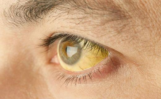 Лечение желтухи у взрослых в домашних условиях