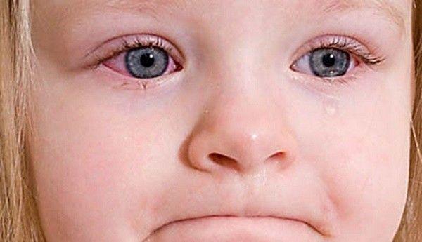 Хламидийная пневмония у детей: основные причины заболевания