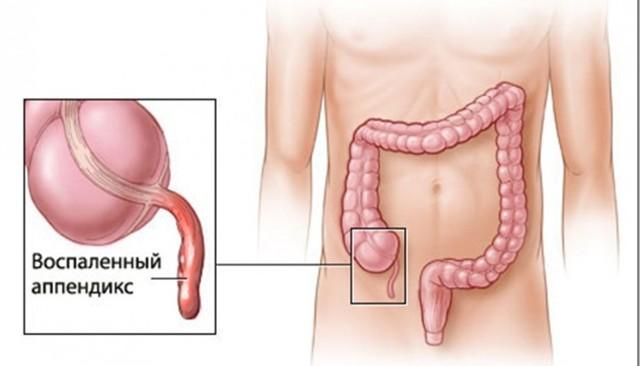 Болит правый бок при беременности: в первом, втором и третьем триместрах, внизу живота, колет, резкий болевой симптом