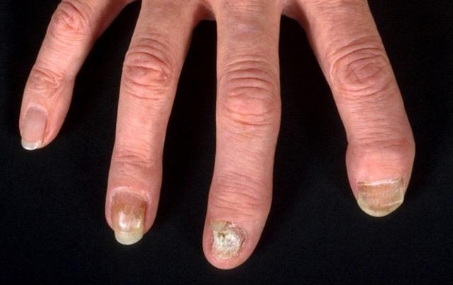 Грибок на руках: симптомы, фото, стадии и виды, аптечные и народные средства лечения