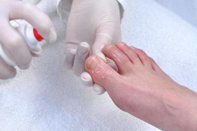 Облазит кожа на пальцах ног и ступнях: фото, причины, лечение и профилактика