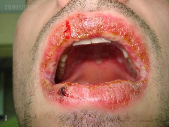 Эритема: фото и симптомы аллергической, многоформной, узловой и других видов заболевания