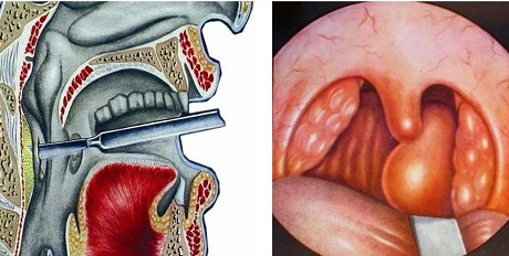 Заглоточный абсцесс: характерные симптомы и лечение
