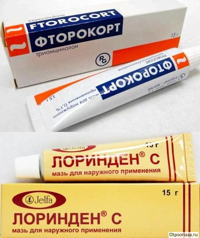 Псориаз: чем лечить — цитостатики, наружные препараты, новые и народные средства