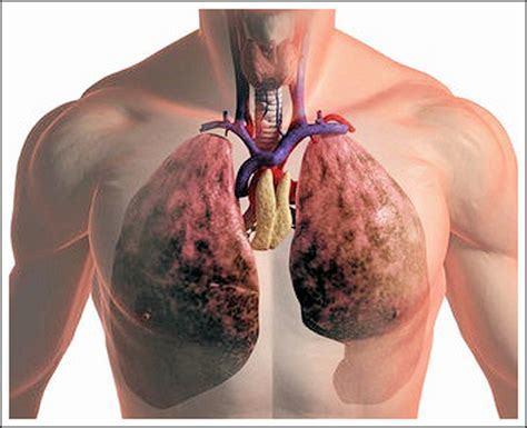 Какая требуется диета при пневмонии