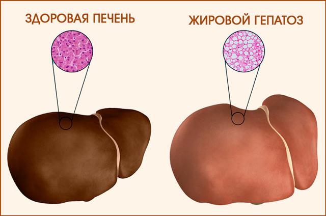 Диета при жировом гепатозе печени, питание, меню на неделю