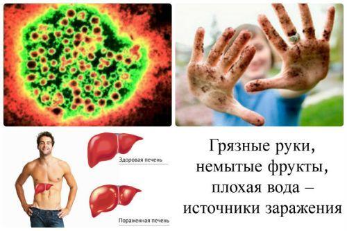 Болезнь Боткина: что это такое, какой это гепатит, как передается «желтуха», симптомы у мужчин и женщин, признаки у детей, последствия, лечение, диета