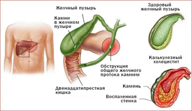 Водянка желчного пузыря: симптомы и лечение