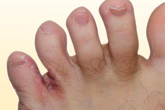 Экзема: фото, симптомы начальной и хронической стадии, как выглядят разные виды болезни